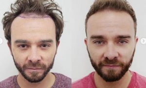 Jack P Shepherd health: Corrie star explains hair loss – 'affecting my mental health'