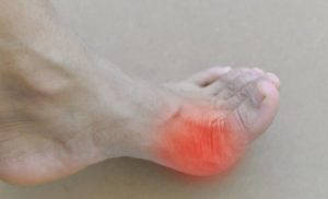 Gout: What helps and what doesn't – Naturopathy naturopathy specialist portal