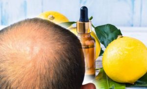 Hair loss treatment: An oil which reduces inflammation promotes hair growth