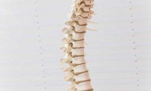 Researchers identify better classification system for adult idiopathic scoliosis