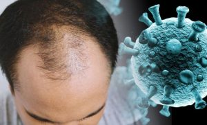 Coronavirus update: The sign in a person's hair that could signal COVID-19