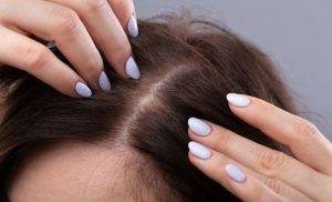 Hair loss causes: Why is my hair thinning?