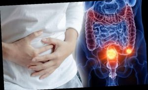 Three common bowel cancer warning signs that you may be ignoring