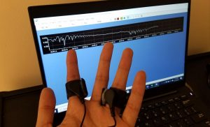 Statistical model improves analysis of skin conductance