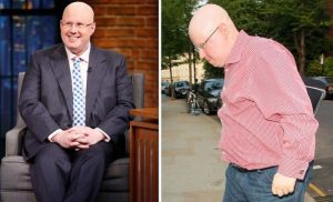 Matt Lucas health: Bake Off host on his alopecia – 'I found several hairs on my pillow'