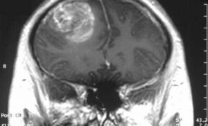 Recurrent GBM brain tumors with few mutations respond best to immunotherapy