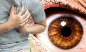 Heart attack: The hidden signs found in your eyes warning of the dangerous condition