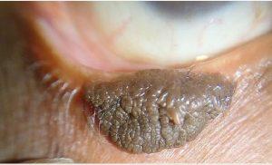 Epidermal Nevus Syndromes