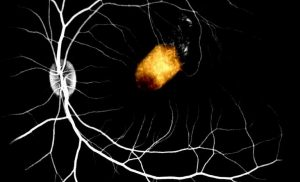 Scientists take important step toward using retinal cell transplants to treat blindness