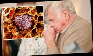 Lung cancer symptoms: Bronchitis that won't go away is an early warning sign