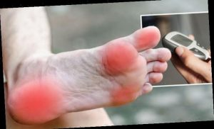 Diabetes type 2 symptoms: Charcot foot is a warning sign of high blood sugar
