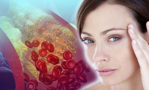 High cholesterol: Lumps and an arc around the iris are two signs found in the eyes