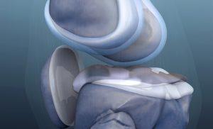What is knee arthroplasty?