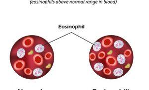 What is Eosinophilia?