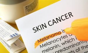 Skin Cancer Classification