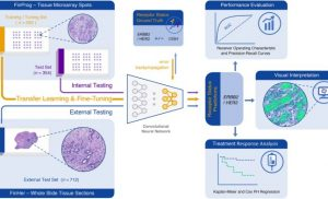 AI predicts efficacy of breast cancer treatment directly from tumor architecture
