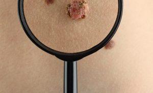 Curettage (Dermatology)