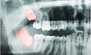 Why Don't All Wisdom Teeth Descend in Adults?