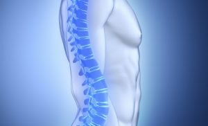 What is Vertebroplasty?
