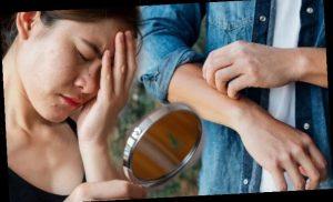 Coronavirus symptoms update: Vesicular lesions, hives, rash and livedo signs to spot