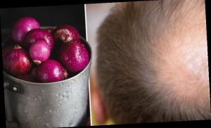 Hair loss treatment: Applying onion juice daily can help treat 'patchy' alopecia – study