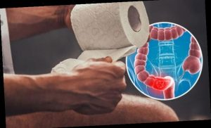 Bowel cancer symptoms: 'Increased looseness' is highly predictive of the deadly disease