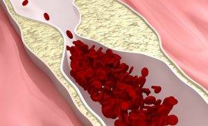 Researchers discover new protein that may play a key role in atherosclerosis