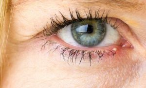 What Does It Mean When Your Eyelids Are Dry?