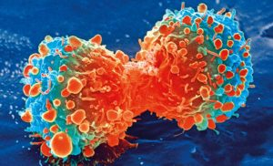 Study reveals crucial details on skin-related side effects of cancer immune therapies