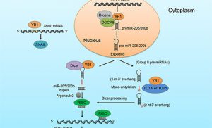 Study reveals how Y-box binding protein 1 promotes cancer metastasis