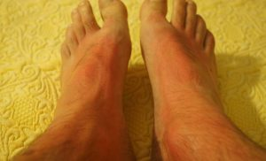 Sunburn: Know the causes, preventive tips and simple ways to treat