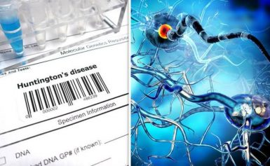 Huntington's disease warning signs: What are the early symptoms? 4 early signs