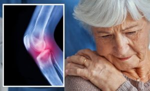 Dementia: Bone loss may lead to cognitive decline warns study – symptoms to look for