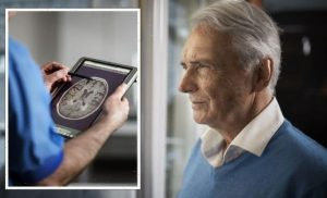 Dementia: The condition to manage in your 40s or risk cognitive decline later on – signs