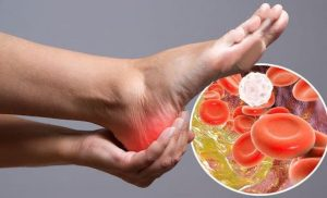 High cholesterol: The telltale sign high levels are causing 'poor blood flow' in your feet