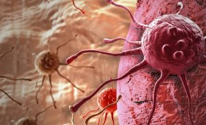 Specially designed lipid nanoparticles overcome resistance to anti-tumor immunotherapy